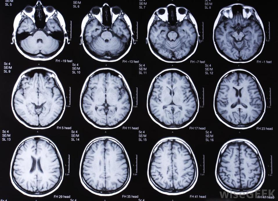 Разработка компании Oxford Brain Diagnostics позволяет выявить деменцию на ранней стадии. Фото: Oxford Brain Diagnostics