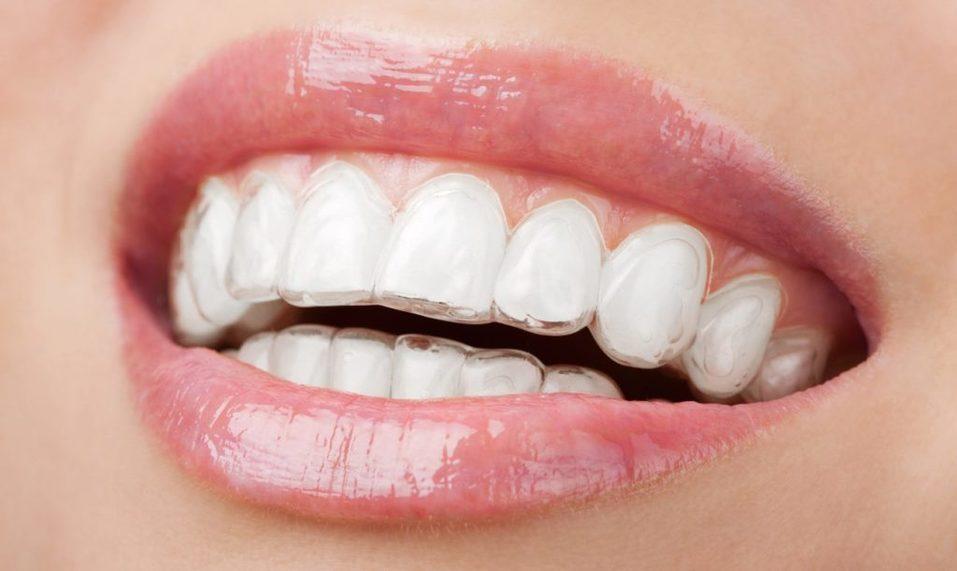 Прозрачная альтернатива: брекеты — не единственный путь к ровной улыбке 5