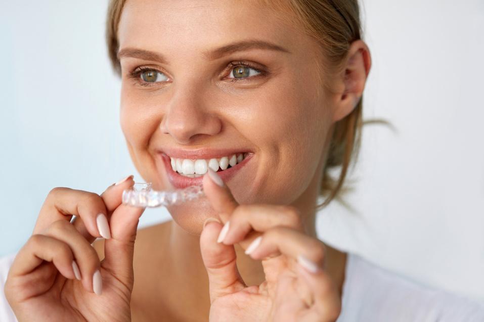 Прозрачная альтернатива: брекеты — не единственный путь к ровной улыбке 1
