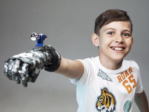 Как российская компания научилась делать роботизированные протезы для детей и взрослых