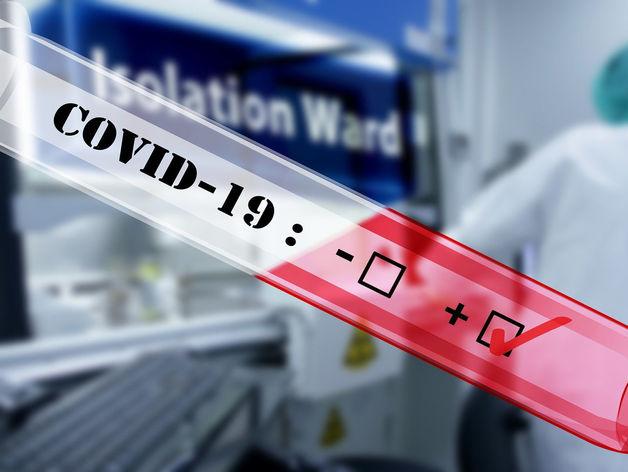 В России за сутки выявили 500 новых случаев коронавируса — всего 2337