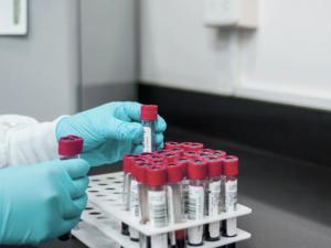 В Екатеринбурге выявили новые случаи коронавируса и разрешили частникам делать тесты