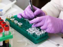 Тест на коронавирус можно будет сделать, не выходя из дома