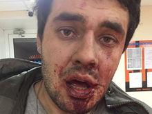 В Челябинске экс-помощник Бурматова обвиняет бизнесмена в нападении