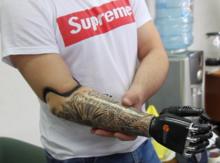 Челябинец получит бионические протезы из бюджетного фонда